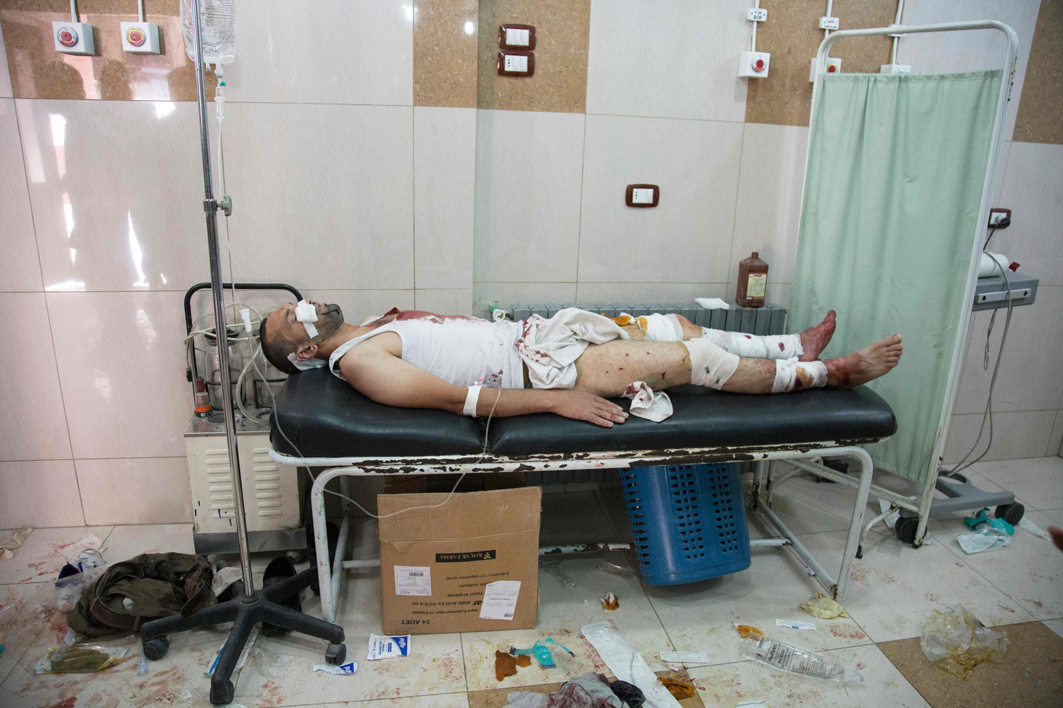 TOPSHOT - A Syrian man lays on a hospital bed at a make-shift hospital following air strikes on rebel-held eastern areas of Aleppo on September 24, 2016. Heavy Syrian and Russian air strikes on rebel-held eastern areas of Aleppo city killed at least 25 civilians on Saturday, the Britain-based Syrian Observatory for Human Rights said, overwhelming doctors and rescue workers. / AFP PHOTO / KARAM AL-MASRI / TT / kod 444