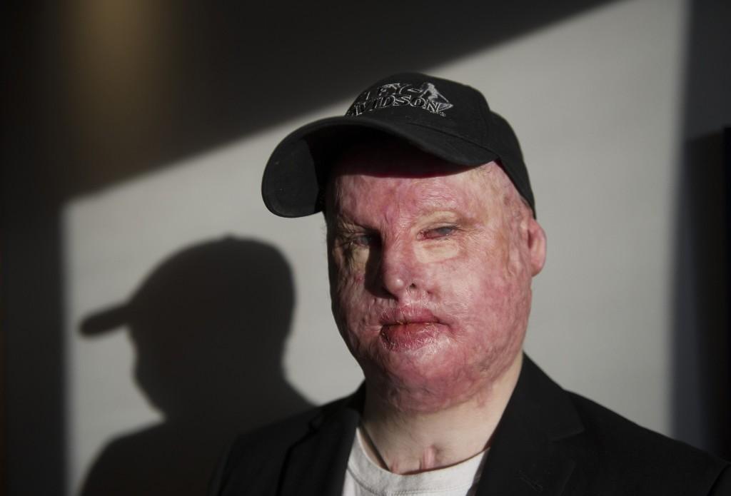 Gustaf Seppelin Solli blev svårt brännskadad vid en olycka på Nordkalk i Luleå.