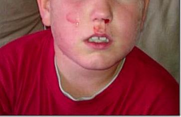Linus slogs kom hem blodig och slagen från skolan. FOTO: Privat